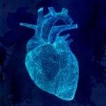 How useful is a cardiac calcium CT scan?